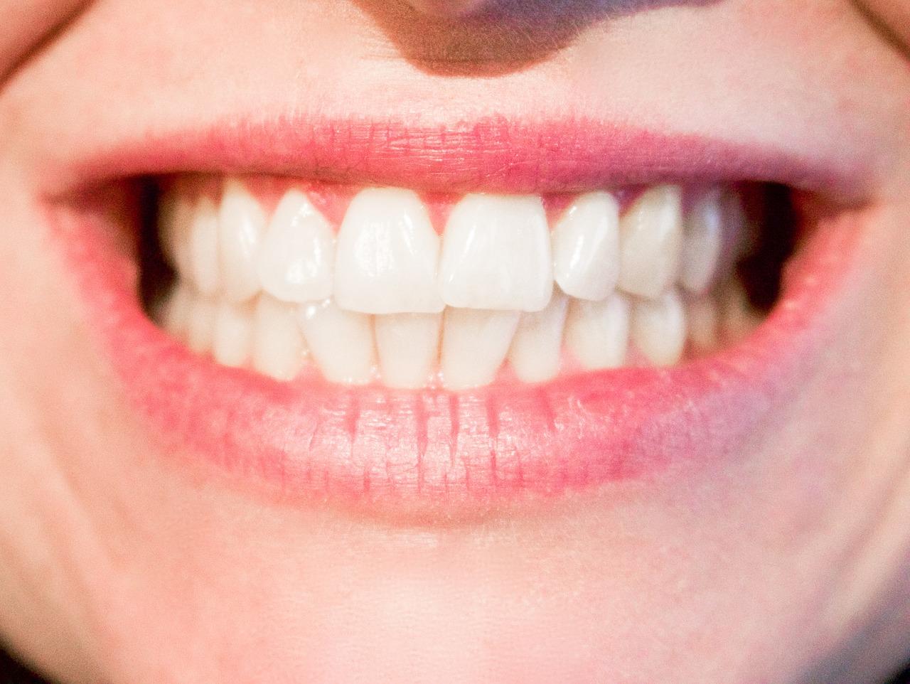 Tandlæge Hørsholm – i Nordsjælland  – Implantatbehandling